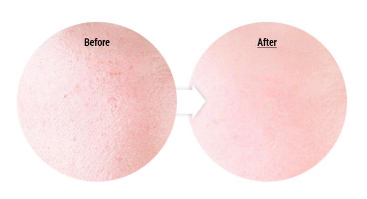 Эффект от спа маски COSRX